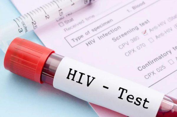 Общий анализ крови при ВИЧ