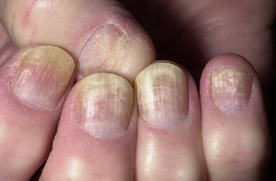 Лечение онихомикоза ногтей на руках