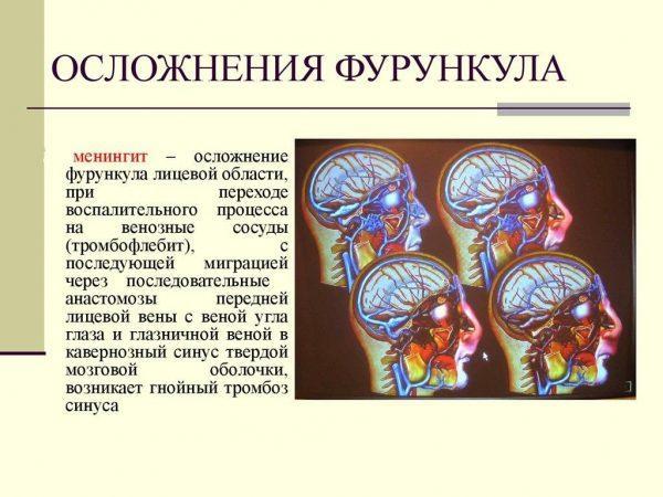 Осложнения фурункула