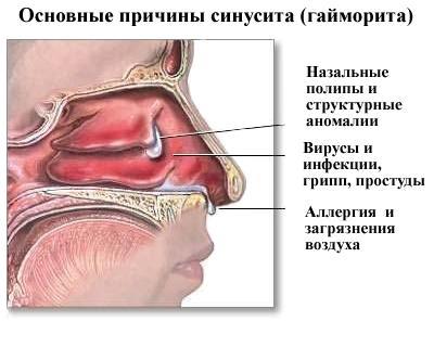 Основные причины синусита