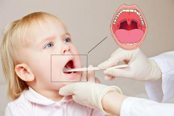 Основные симптомы тонзиллита у детей