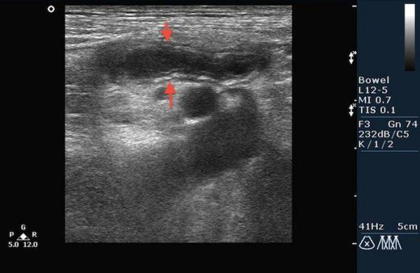 Острый флегмонозный аппендицит на УЗИ