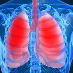 Какие хрипы при пневмонии