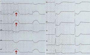 Подъем ST при остром инфаркте миокарда