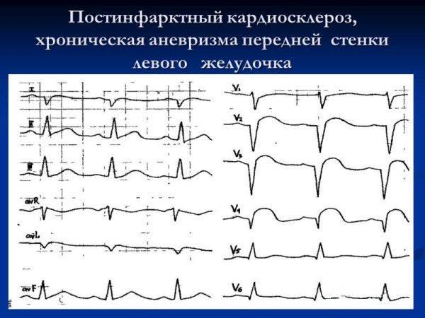 Постинфарктный кардиосклероз, хроническая аневризма передней стенки левого желудочка