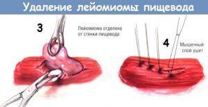 Проведение операции по удалению лейомиомы пищевода