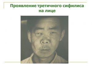 Проявление третичного сифилиса на лице