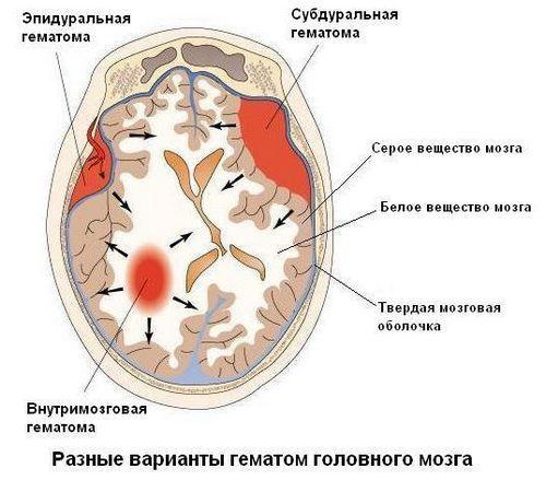 Разновидности гематом головного мозга