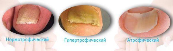 Разновидности грибка ногтей на руках