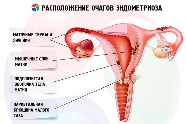 Расположение очагов эндометриоза