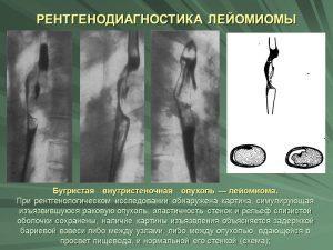Рентгенодиагностика лейомиомы