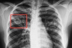 Рентген человека, больного туберкулезом