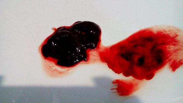 Сгустки крови во время месячных