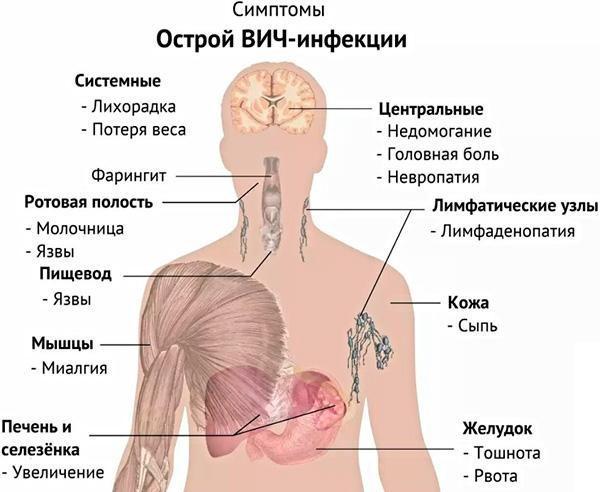 Симптомы ВИЧ-инфекции