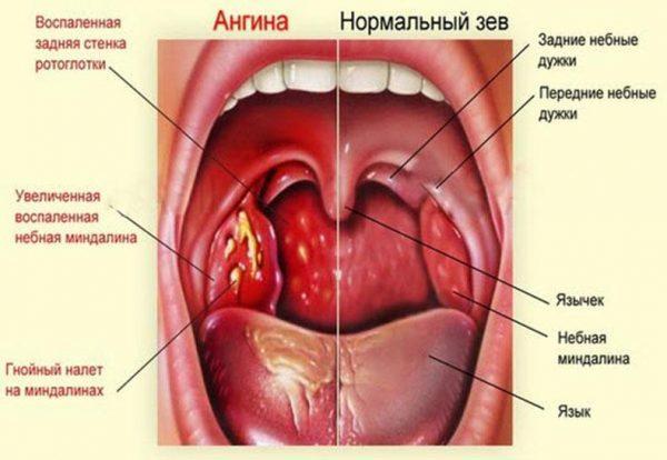 Симптомы ангины