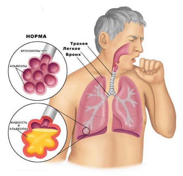 Симптомы и признаки воспаления легких