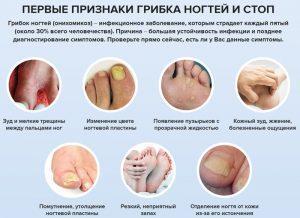 Симптомы и признаки грибка ногтей