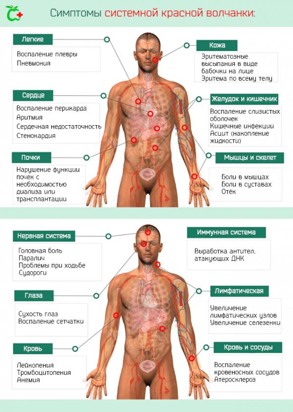 Симптомы красной волчанки у мужчин