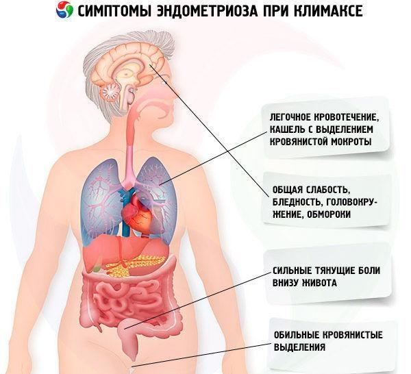 Симптомы проявления эндометриоза при климаксе