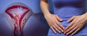 Симптомы эндометриоза у женщин