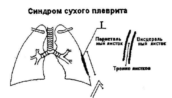Синдром сухого плеврита