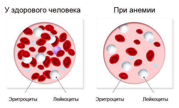 Состав крови при анемии