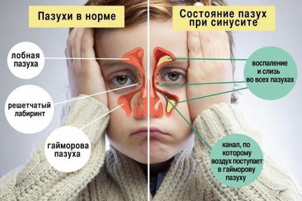 Состояние носовых пазух при синусите изнутри