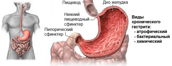 Строение желудка и виды гастрита