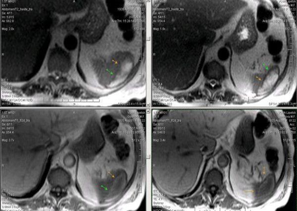 Субкапсулярная гематома селезенки