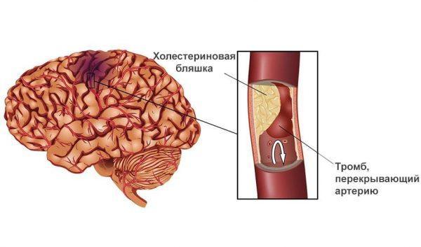 Схема инсульта