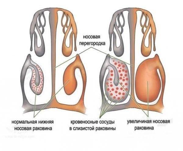 Физиологический насморк у грудничка