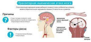 Транзиторная ишемическая атака мозга