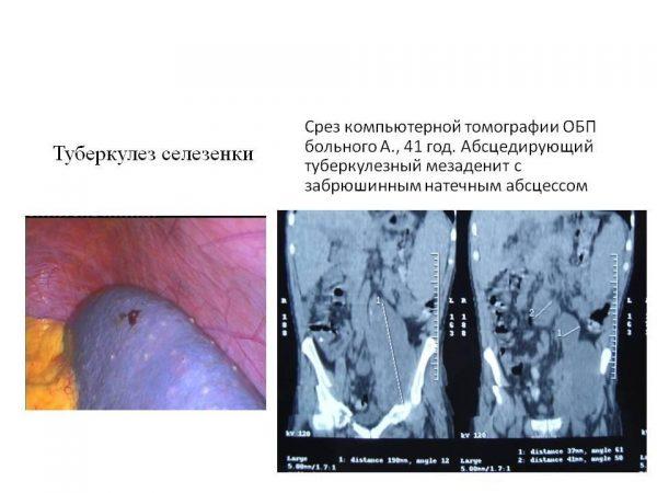 Туберкулез селезенки - фото
