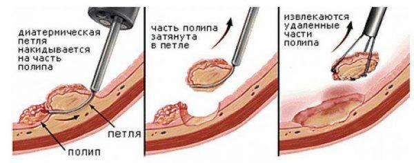 Удаление полипов хирургическим путем
