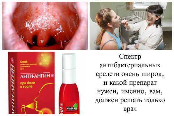 Фарингит - выбор антибактериальных средств