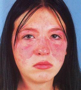 Фото женщины с красной волчанкой