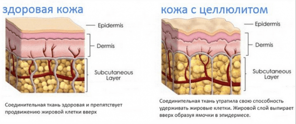 Целлюлитная кожа