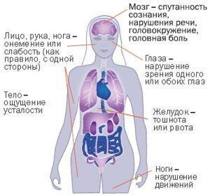 Что происходит с органами и частями тела при инсульте