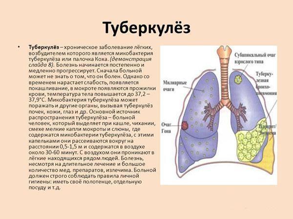 Что такое туберкулез и его симптомы