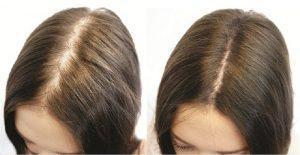 Шампунь от выпадения волос - фото до и после