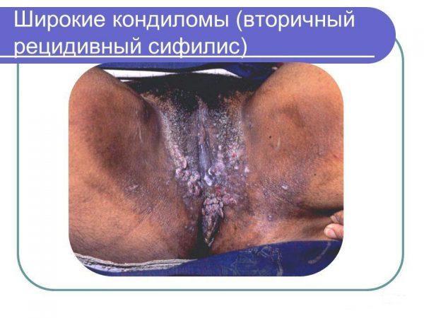 Широкие кондиломы (вторичный рецидивный сифилис)