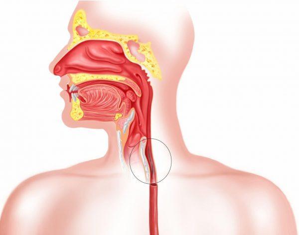 Язва пищевода — симптомы