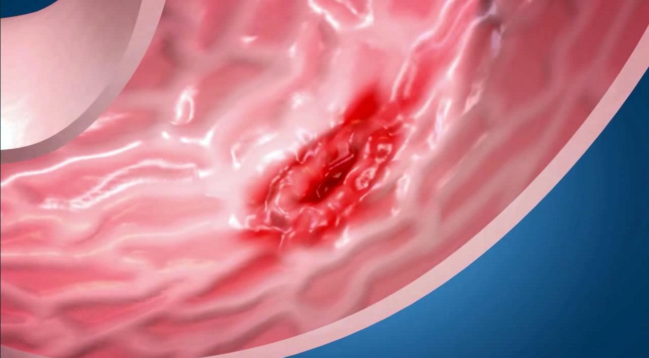 Язвенный гастрит — симптомы и лечение