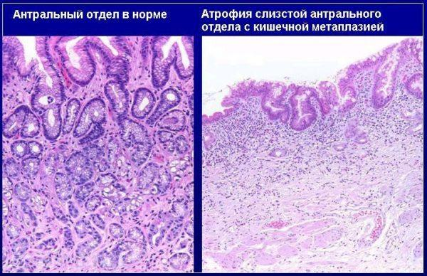 Атрофия слизистой антрального отдела желудка