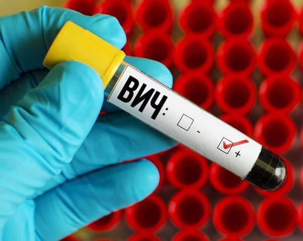 ВИЧ и СПИД - это не одно и то же