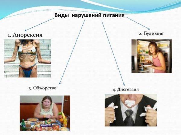 Виды нарушений питания