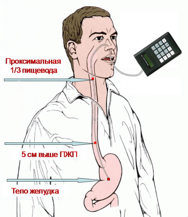 Внутрижелудочная рН-метрия