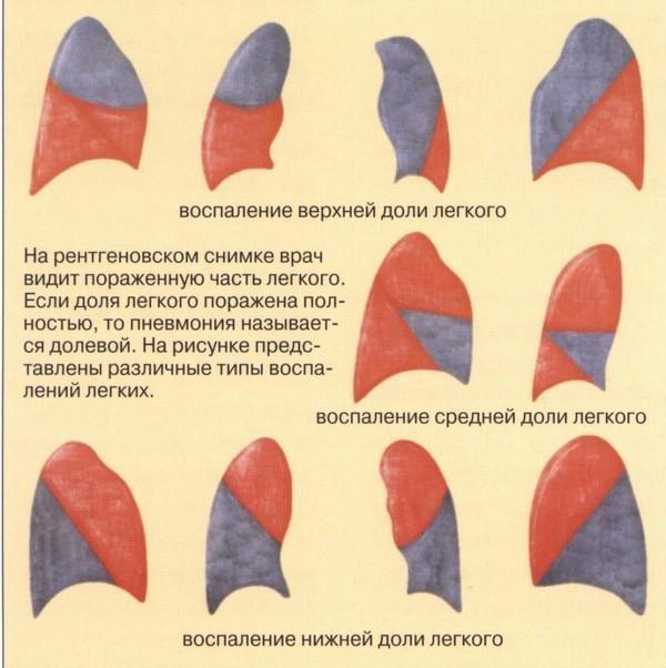 Диагностика долевой пневмонии