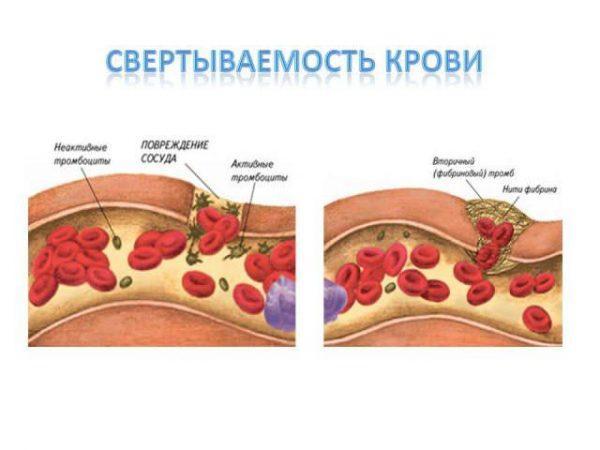 Как свертывается кровь