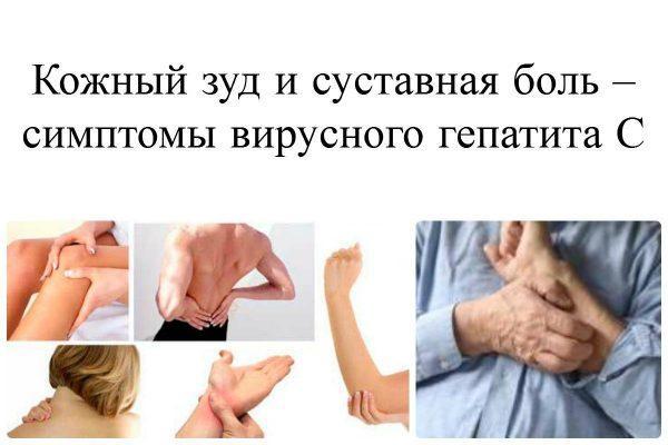 Кожный зуд и суставная боль